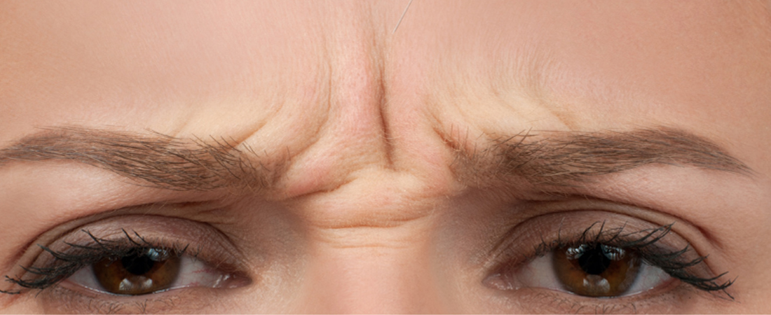 Botox vs. Fillers  What's the Difference? image